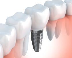 implantologia-montevarchi