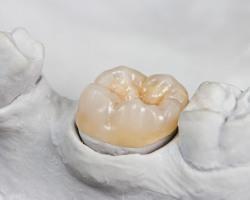 protesi-dentarie-montevarchi-valdarno